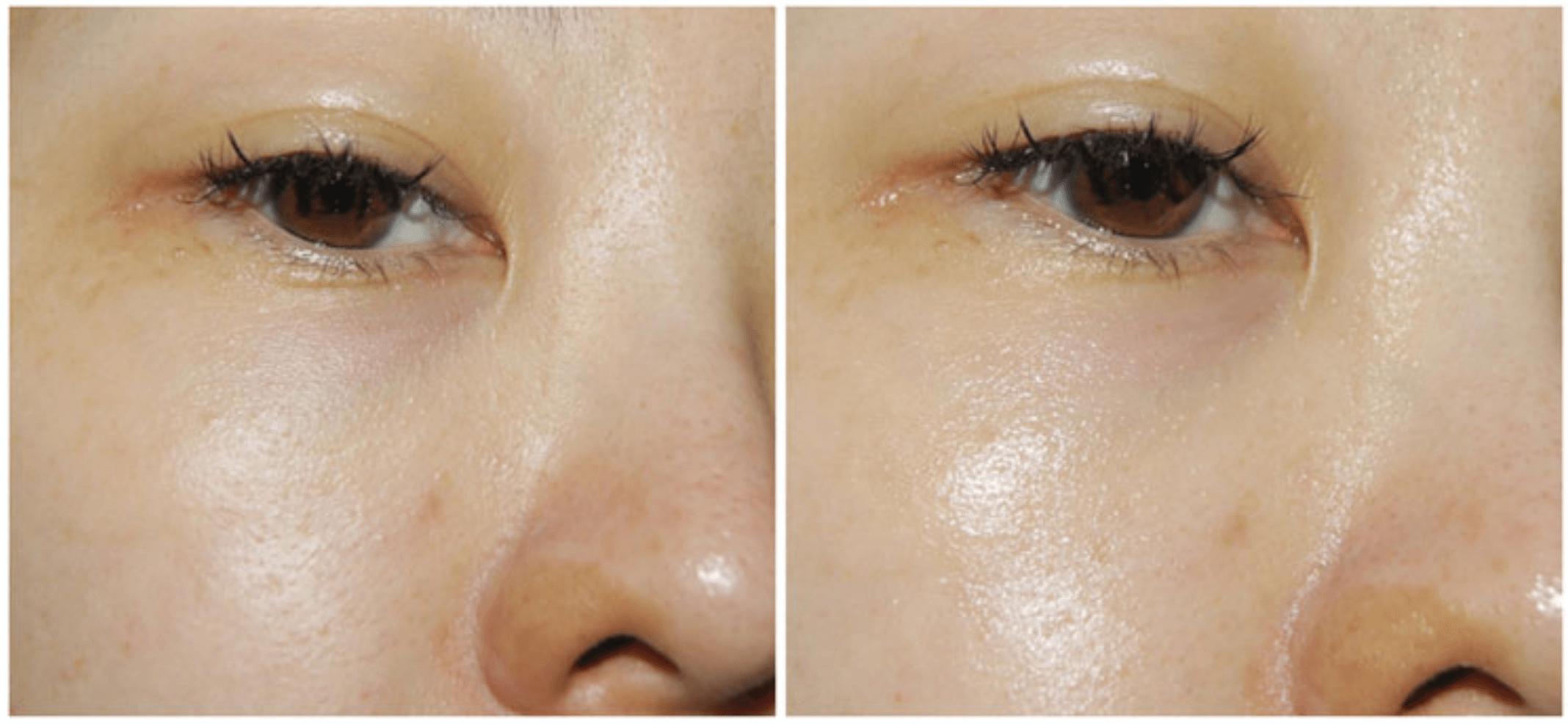 Fotografía de rostro de cliente de antes y después de aplicación de la crema