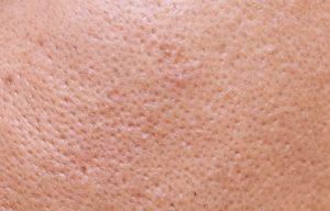 Ejemplo de piel con poros abiertos