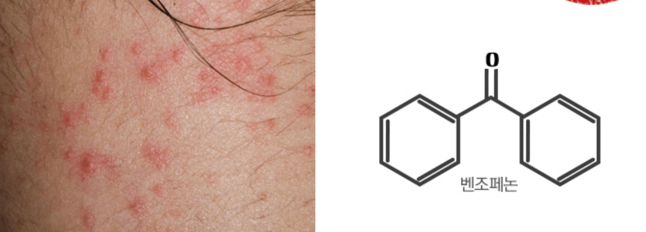 Fotos de la piel dañada por la benzofenona
