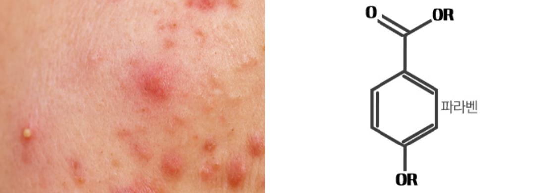 Reacción alérgica de Parabenos