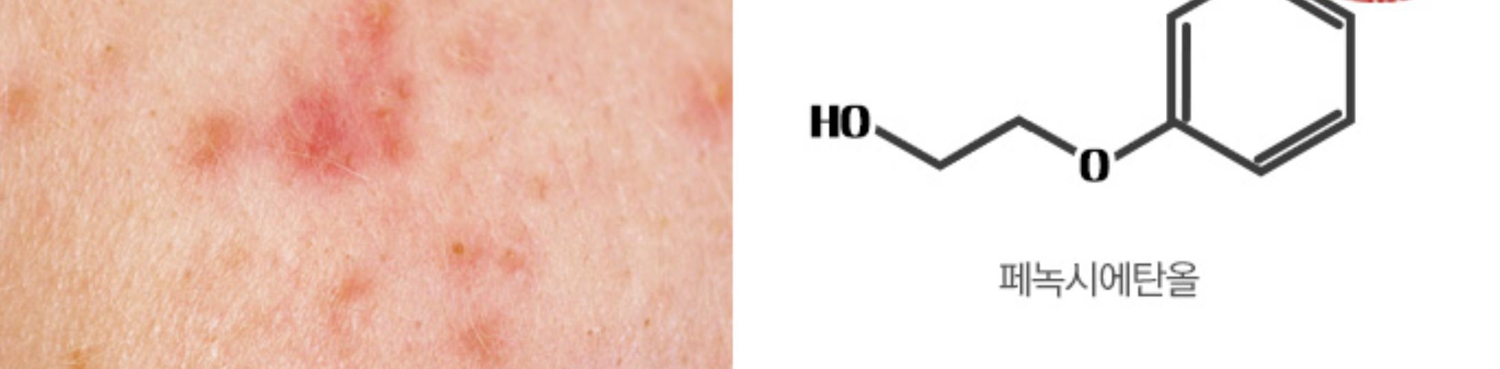 Fotografía de la piel reaccionada por fenoxietanol